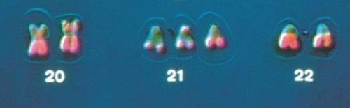 08_20aTrisomy21Karyotype-L